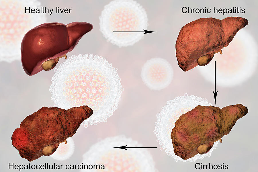 Cirrhosis Of The Liver Effect's On Human Body